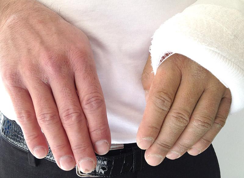 Beispiel Hand mit irritierten Nerven